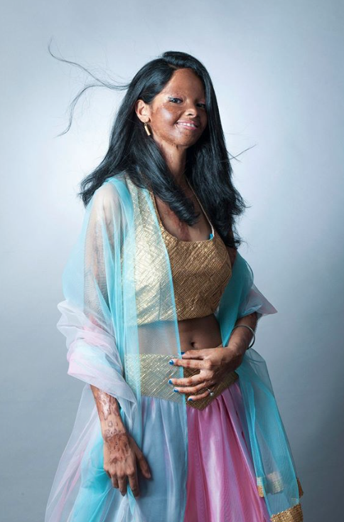 """shoot for beauty"" is a photoshoot to raise awareness about acid attacks"